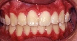 出っ歯治療後 治療例1のイメージ