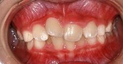 出っ歯 治療例1のイメージ