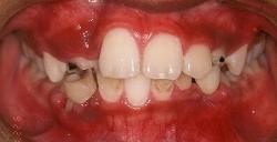 過蓋咬合 治療例4のイメージ