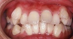 乱杭歯 治療例4のイメージ