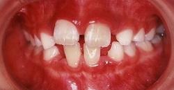すきっ歯 治療例3のイメージ
