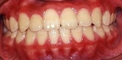 受け口 治療例2のイメージ